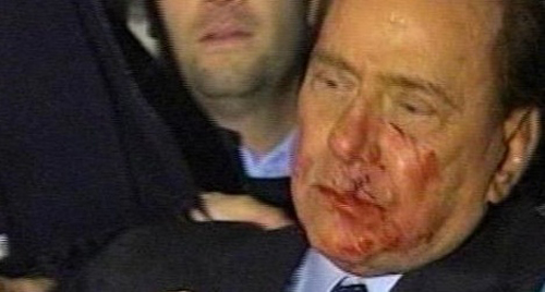 Berlusconi colpito al volto da un oggetto contundente dopo il comizio in piazza Duomo a Milano sanguina copiosamente