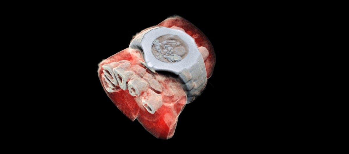 Radiografia ai raggi X in 3D a colori