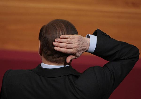 Il trapianto di capelli di Berlusconi